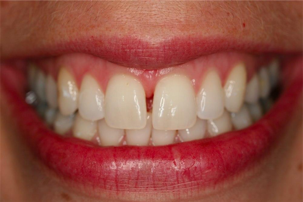 Убрать щель между зубами в домашних условиях 78